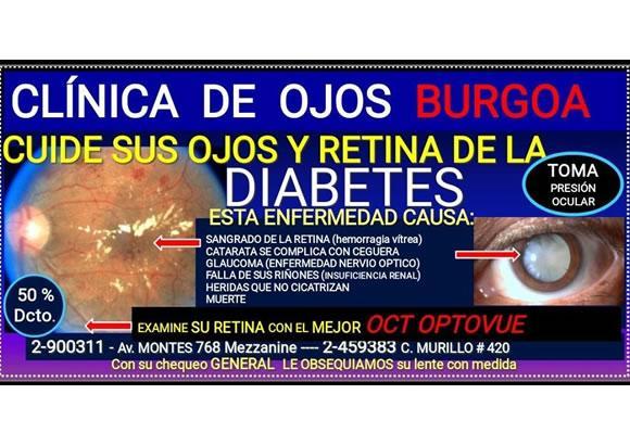 CLINICA DE OJOS BURGOA