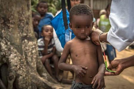 Malnutrición retrasa el crecimiento de 155 millones de niños, según informe