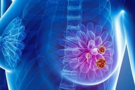 Aminora uso de quimioterapia en fase inicial de cáncer de seno, dice estudio