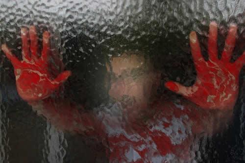 Una niña vietnamita sufre una rara enfermedad que le hace sudar sangre a causa del estrés escolar