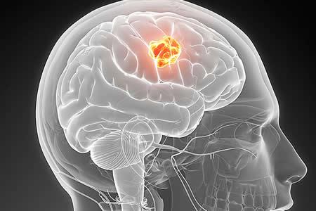 Nueva ventana terapéutica contra el glioblastoma, de los tumores más letales