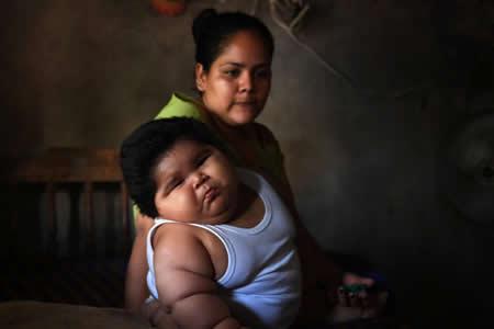 El insólito caso del bebé mexicano de 10 meses que pesa casi 30 kilogramos