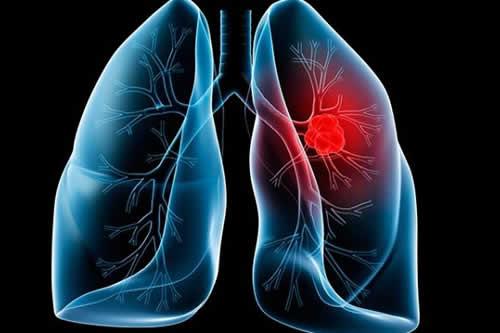 Un tratamiento contra el cáncer de pulmón reduce el riesgo de muerte un 51 %