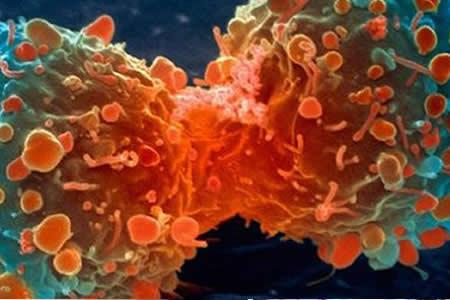 Descubren proceso biológico para mejorar respuesta inmunológica al cáncer