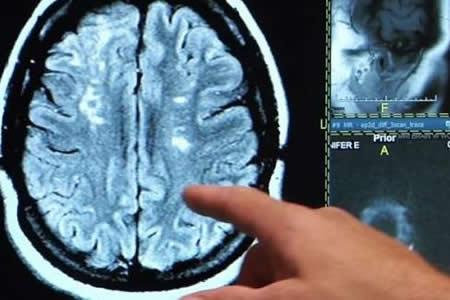 Células de la placenta pueden ayudar a los pacientes con derrames cerebrales