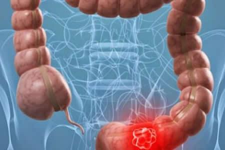 La cantidad de proteínas de la dieta, clave para prevenir cáncer colorrectal