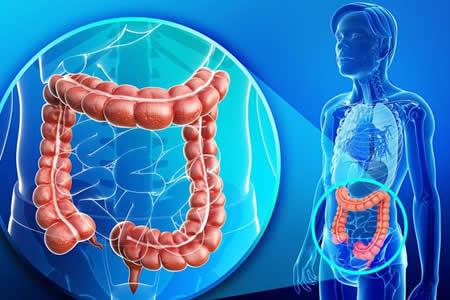 La microbiota juega un papel esencial en el crecimiento del cáncer de colon