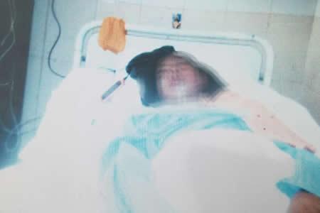 Un conscripto lucha para no quedar parapléjico en un hospital de El Alto