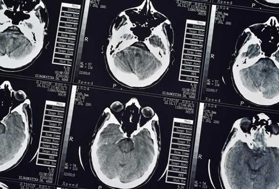Científicos afirman que analizar nuestros cerebros permitiría detectar a los homicidas