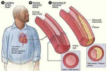 Alimentos que combaten el colesterol