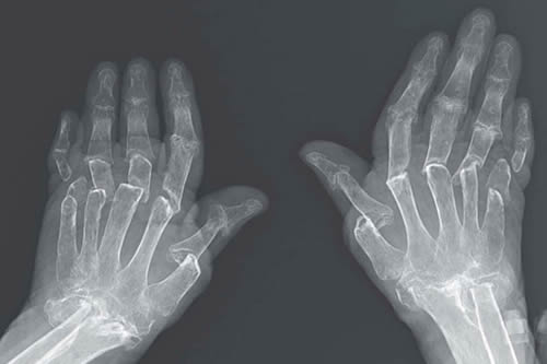 Dedos telescopados: Una enfermedad virtualmente incurable provoca una rara anomalía en las manos de una mujer