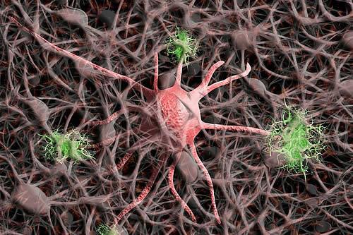 Científicos identifican la posible causa del alzhéimer