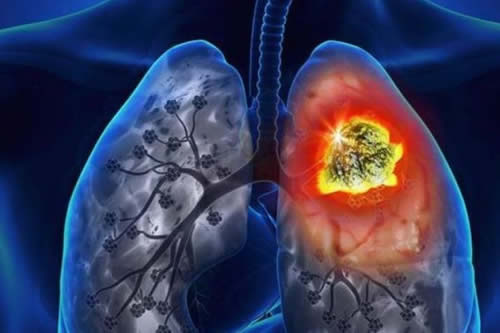 El 99 % de casos de cáncer de pulmón en México se diagnostican tardíamente