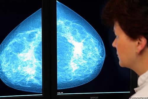 Una hormona masculina podría ser clave para ayudar a curar el cáncer de mama