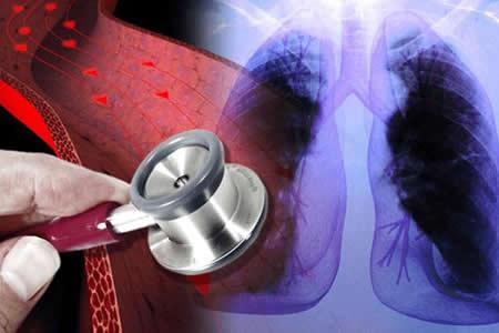 Científicos lusos hallan molécula que predice hipertensión arterial pulmonar