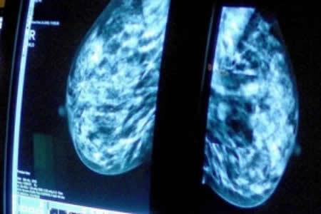 Argentina, segundo país con más muertes por cáncer de mama en Latinoamérica