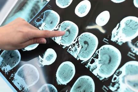 Descubren dos fármacos que podrían frenar enfermedades neurodegenerativas