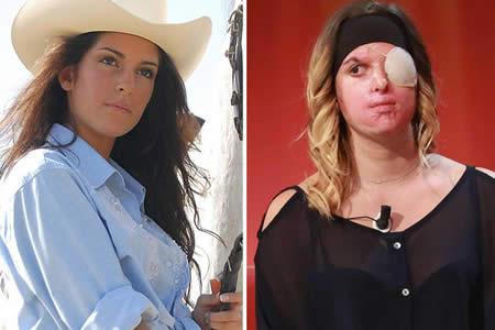 """""""No es amor"""": Una reina de belleza decide mostrar su rostro desfigurado tras ser rociada con ácido"""