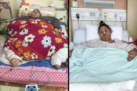 El tratamiento de la egipcia obesa en la India termina en batalla campal