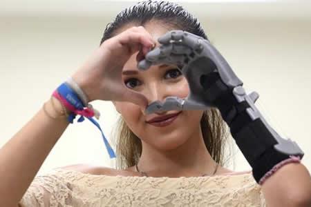 Prótesis impresas en 3D cambian vida de personas de bajos recursos en México