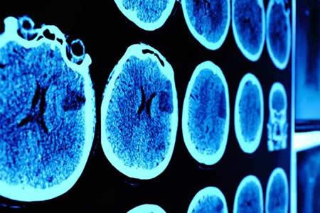 Imágenes en 3D de la célula dan nuevas pistas de la enfermedad de Hungtinton