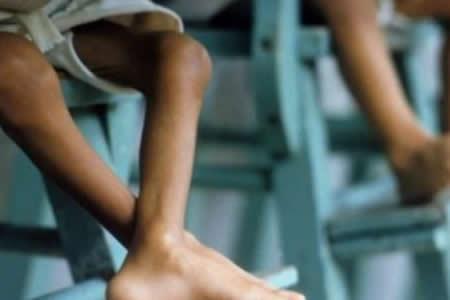 Estudio revela que 35,5 % de niños pobres presentan desnutrición en Venezuela