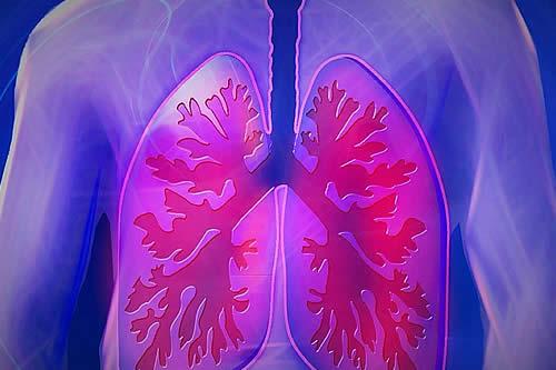PharmaMar llevará a América Latina y el Caribe su tratamiento contra el cáncer de pulmón