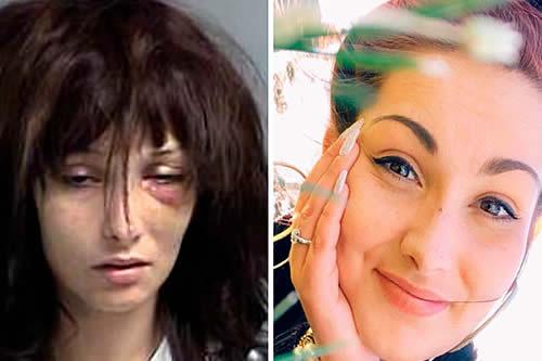 La impactante transformación de una joven adicta a la heroína tras años sin probar drogas